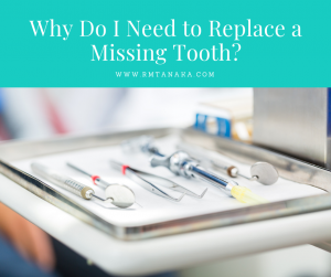 Why do I need to Replace a Missing Tooth?